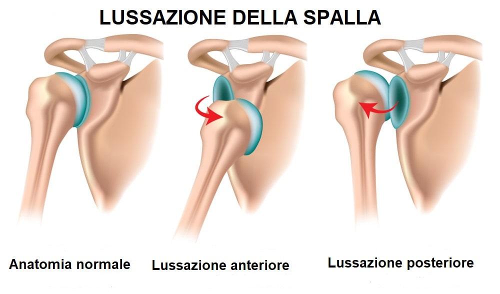 Lussazione anteriore o posteriore spalla